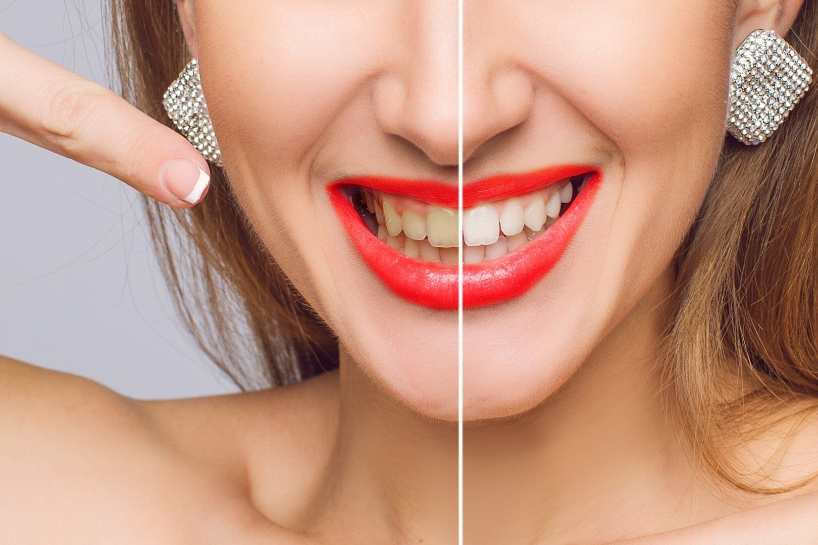woman teeth before & after dental treatment
