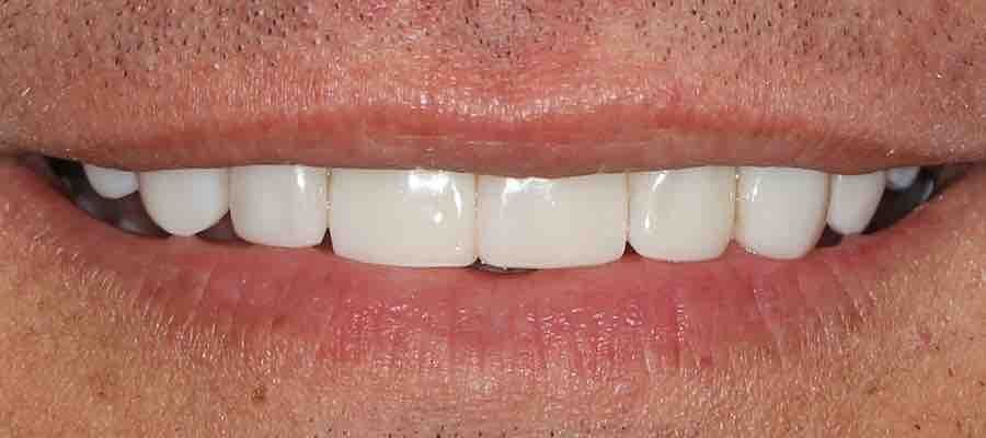 After Dental Treatment By Sonika Sharma