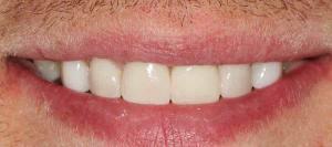 Dental Implant dentist in Canberra
