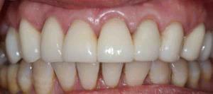 dental crown Canberra