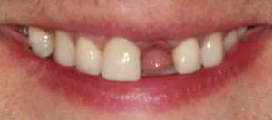 missing teeth replacement at Dentist Queanbeyan