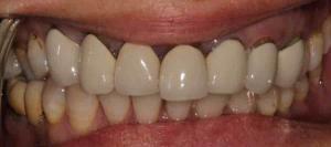 dental crown bridge Queanbeyan