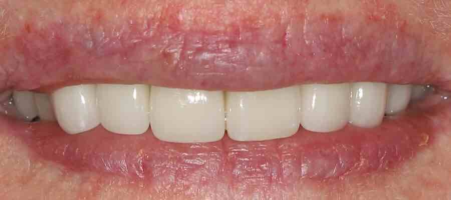 After amazing cosmetic work by Canberra cosmetic dentist