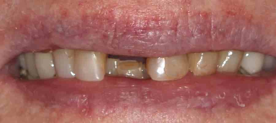 Before cosmetic dentist work photo
