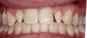 dental boning and filling