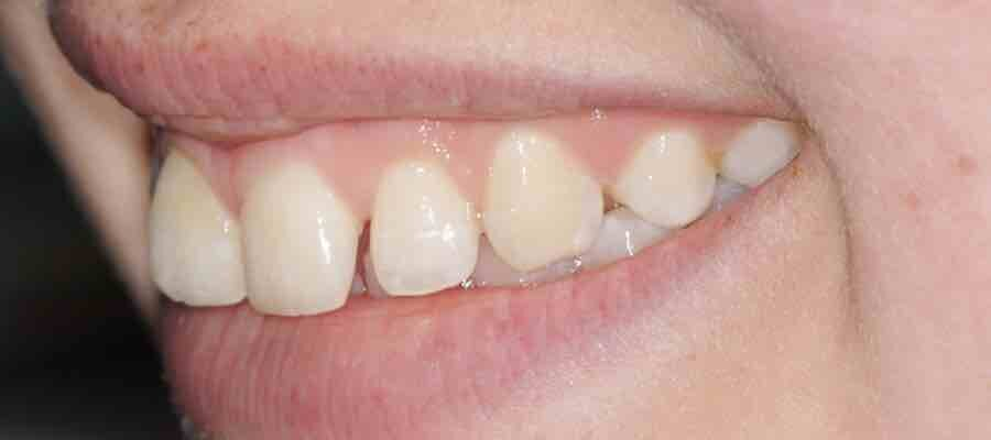 before photo of Micro rotation which works by slightly rotating the teeth.