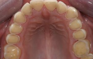 Photo showing dental erosion
